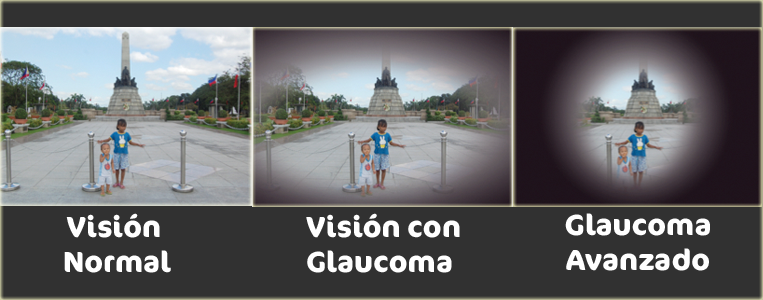 Visión normal y con glaucoma